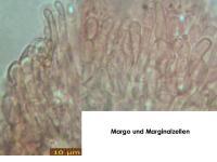 Hymenoscyphus-imberbis-(IKI-)-190517-SteBo-MCol-03JJ