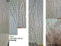 Strossmayeria-basitricha-191011-WoHuth-MCol-02JJ