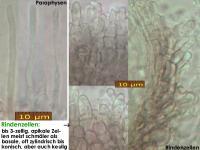 Pyrenopeziza-caespiticia-210205-MCol-03JJ