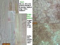 Mollisia-nervicola-210413-iw103-MCol-02JJ
