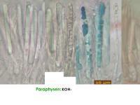 Mollisia-nervicola-210413-iw103-MCol-03JJ