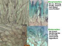 Mollisia-nervicola-210413-iw103-MCol-04JJ