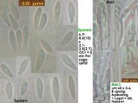 Mollisia-scopiformis-200321-MCol-01