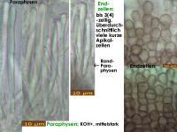 Mollisia-scopiformis-200413-IW066-MCol-02JJ