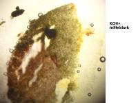Mollisia-scopiformis-200413-IW066-MCol-04JJ