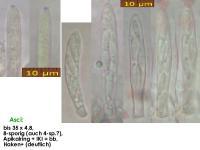 Cistella-grevillei-(galii-ss-Boudier)-210526-iw115-MCol-02JJ