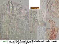 Cistella-grevillei-(galii-ss-Boudier)-210526-iw115-MCol-05JJ