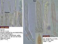 Pyrenopeziza-dilutella-100809-MCol-01