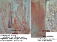 Pyrenopeziza-dilutella-100809-MCol-03