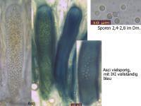 Biatorella-resinae-100807-MCol-01